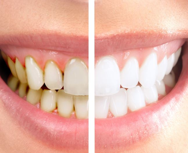 Understanding the Benefits of Cosmetic Dentistry