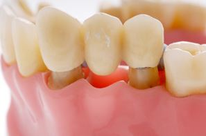 3 Types of Dental Bridges and When They Should be Considered